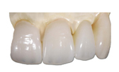 IPS Emax Crown that uses resin bonded lithium disilicate material