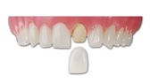 photo of prodenco dental labs veneers